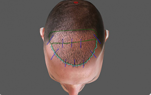 a computer generated image of a man with a robotic hair transplant.