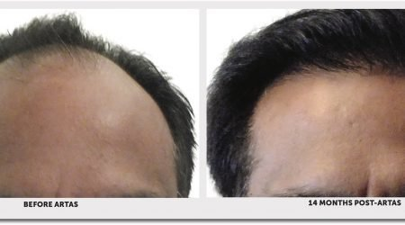 ARTAS Before & After robotic hair transplant procedure with Doctor Yates