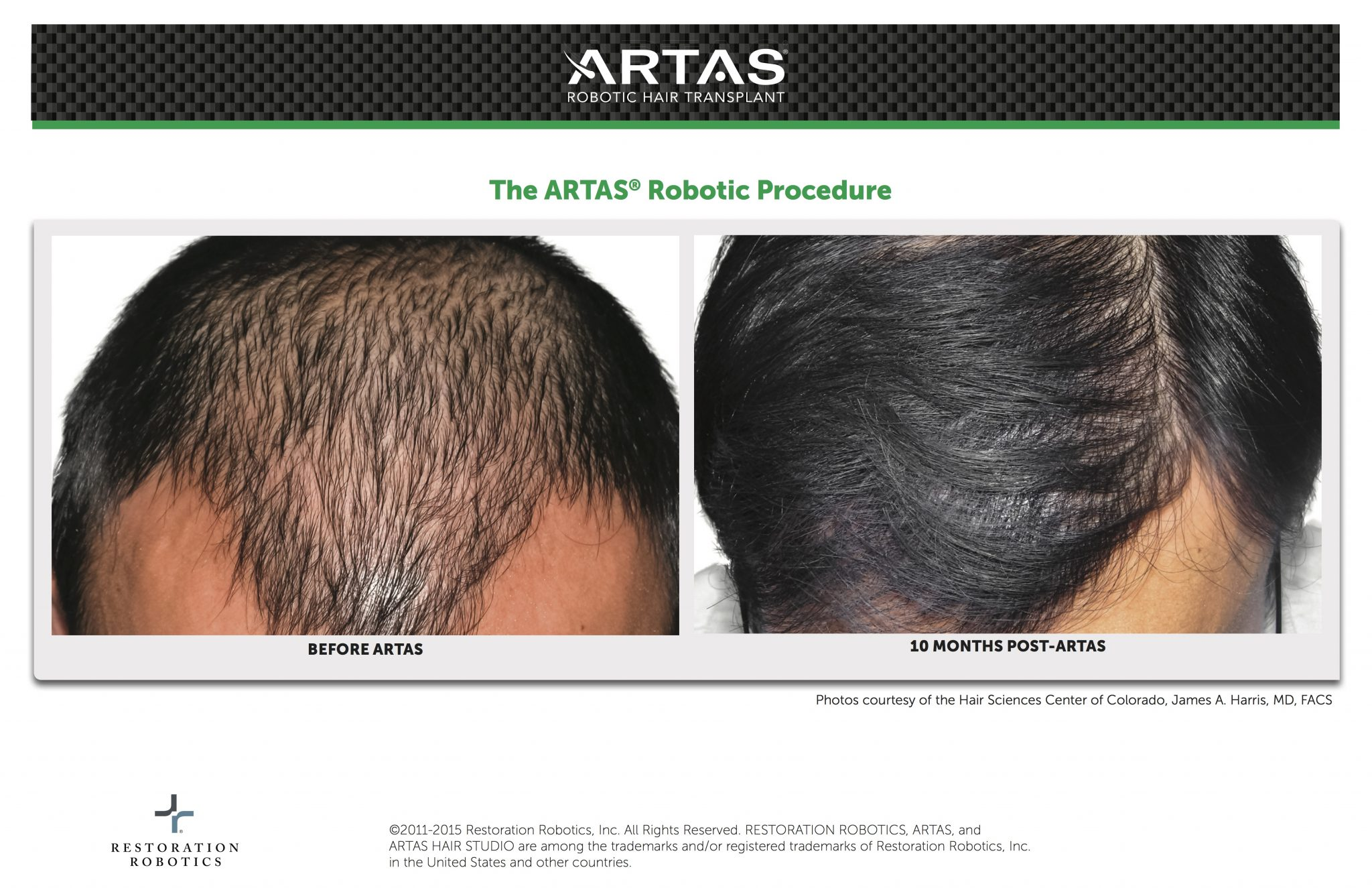 ARTAS Before & After Robotic Hair Transplant Procedure By Dr. James A. Harris
