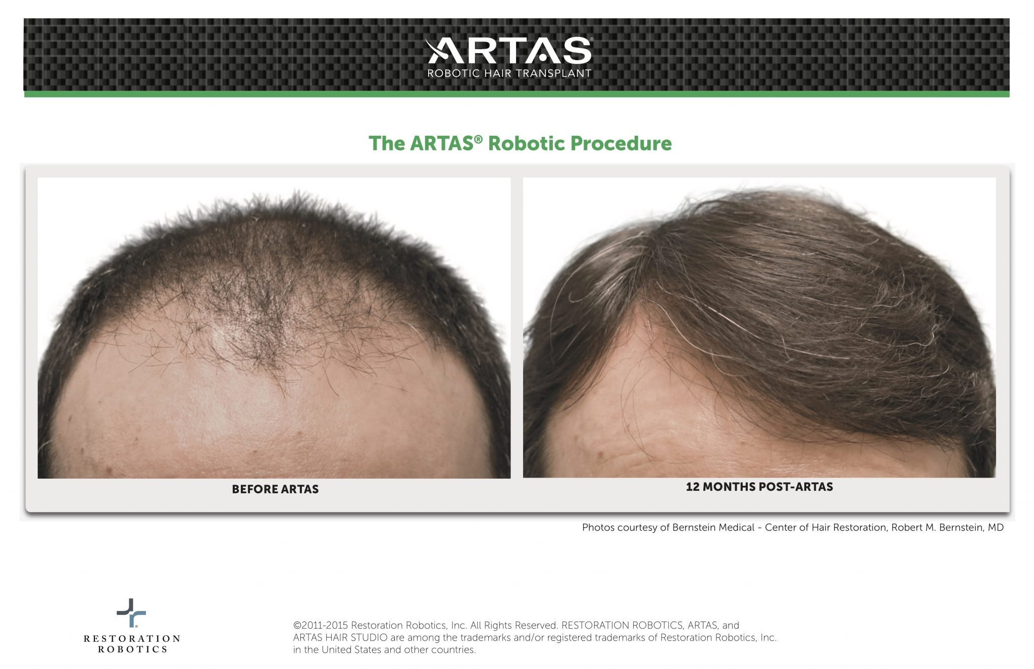 ARTAS Before & After Robotic Hair Transplant Procedure By Dr. Robert M. Bernstein