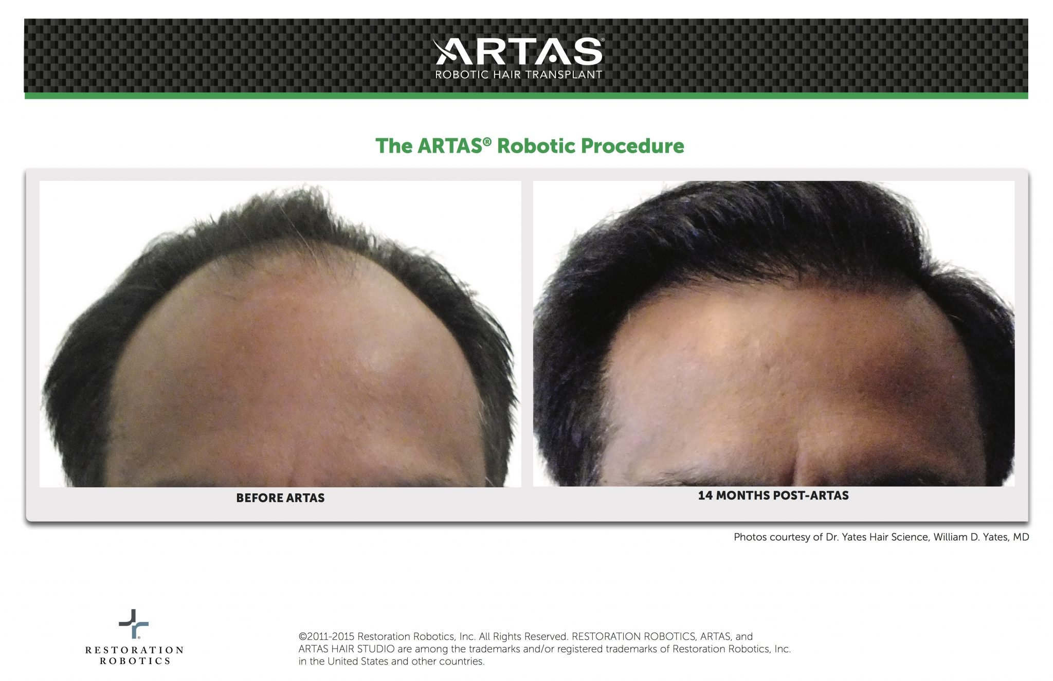ARTAS Before & After Robotic Hair Transplant Procedure By Dr. William D. Yates