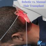 manual vs robotic man undergoes robotic hair transplant